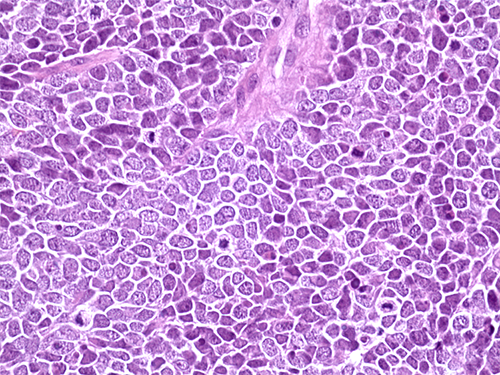 Hematoxylin and eosin staining of a tissue section from a Merkel cell carcinoma tumor.