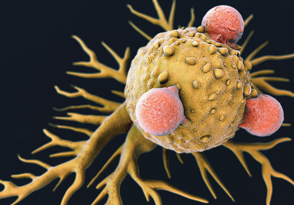 Scanning electron micrograph of T lymphocyte cells attached to a cancer cell.