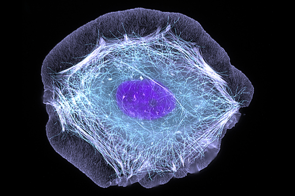 human skin cell treated with a growth factor that enabled the cell to move