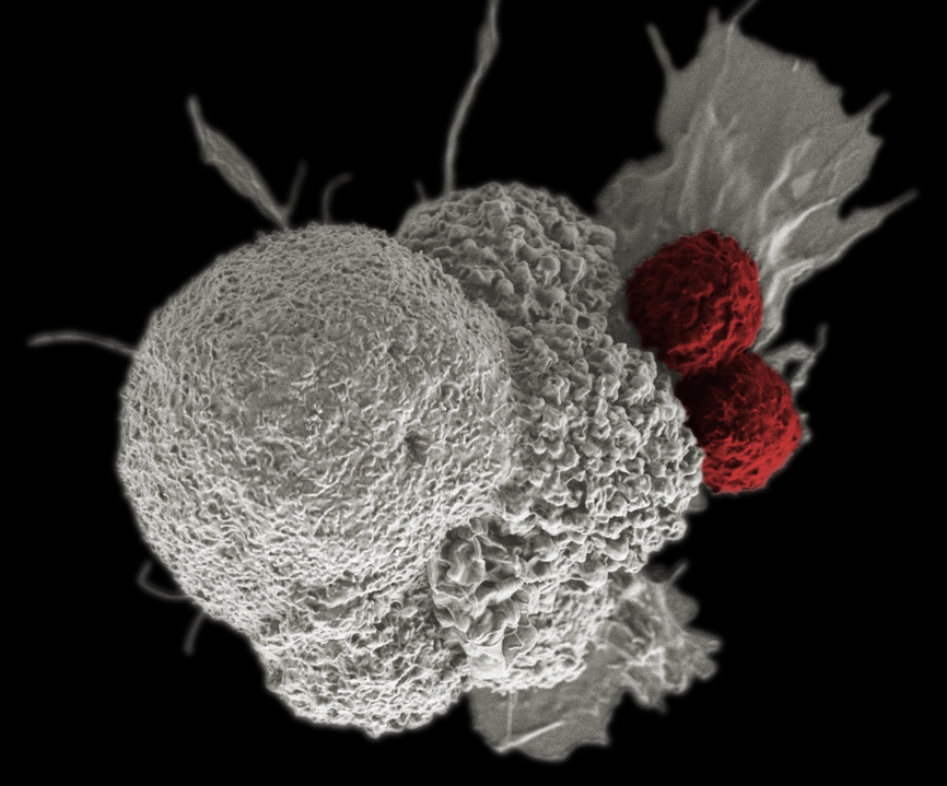 A pseudo-colored scanning electron micrograph of cancer cells being attacked by two cytotoxic T cells.