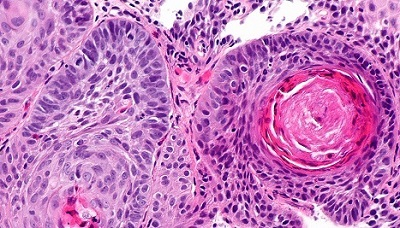 Esophageal cancer cells