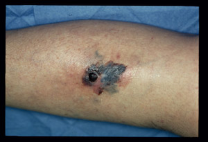 """Photograph of melanoma on a patient's arm."""