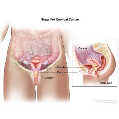 Cervical Cancer Stage IVA