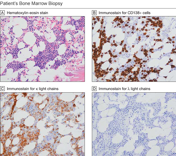 A bone marrow biopsy confirmed a case of smoldering myeloma: Hematoxylin-eosin staining showed 30% to 50% marrow cellularity (A); immunostaining for CD138 showed 40% CD138 positive cells (B);  Immunostaining for free kappa  light chains (C) and free lambda light chains (D) showed a kappa light chain restriction pattern with almost no lambda-positive plasma cells. (100X magnification)