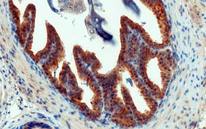 This section of prostate from a 13-week-old TRAMP mouse with a well-developed adenocarcinoma was stained with Twist, a transcription factor implicated in metastasis, and counter-stained with hematoxylin. Researchers have found that a vaccine against Twist, in combination with the androgen-receptor antagonist enzalutamide, more than doubled the survival rate of castration-resistant prostate cancer in mice.