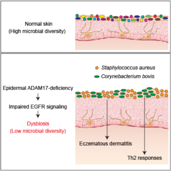 The role of dysbiosis in the pathogenesis of atopic dermatitis has been unclear. Nagao and colleagues study mice with eczematous dermatitis and naturally occurring dysbiosis and demonstrate that eczematous dermatitis is driven by S. aureus and T helper 2 responses are enhanced by Corynebacterium bovis. Dysbiosis occurred in part dependent on EGFR signaling.