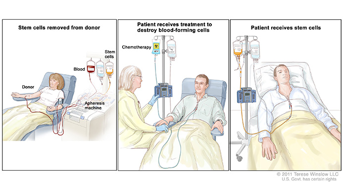 stem cell transplant
