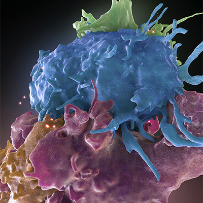 HIV infecting healthy cell