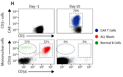 CAR T cells expand dramatically (blue) in the peripheral blood of patients and coincide with elimination of CD19+ normal B cells (green) and leukemic blasts (red).