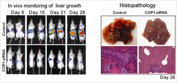 Representative in vivo imaging (left) of animals with HCC cells growing in the liver and treated with either control or COP1 siRNA. Brighter coloring represents more cell growth. Photos of whole livers and sections of liver tissue (right) on day 28 after cell transplantation and treatment with either control or COP1 siRNA.