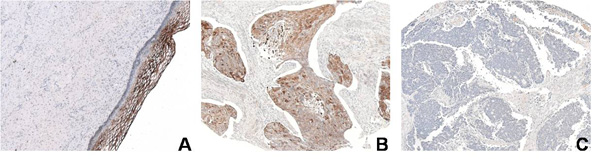 """Normal cervical epithelial cells show a restricted GalNAcα1-3Gal localization when stained with antibody 132-3 (dark brown area) (A). In squamous cell carcinomas of the cervix, however, the staining is more intense and spread throughout (B). This staining is specific to this cancer subtype, since in other tumors, GalNAcα1-3Gal cannot be detected (C)."""