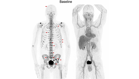 Patient scan