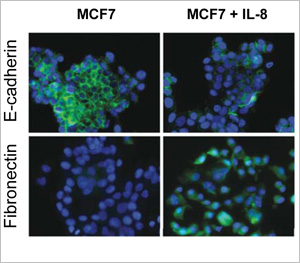 Human epithelial breast cancer MCF7 cells were left untreated or incubated with recombinant IL-8 and analyzed for expression of epithelial E-cadherin (green) and mesenchymal Fibronectin (green) by immunofluorescence. The nuclei were stained with DAPI (blue). Treatment with IL-8 induced down-regulation of E-cadherin and up-regulation of Fibronectin, characteristics of an EMT.