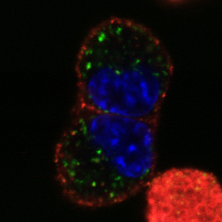 Melanoma cells capture a cytokine called IFNγ (green) on their surfaces.