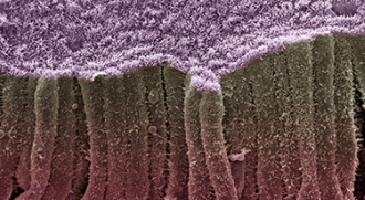 scanning electron micrograph of microbiome