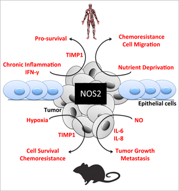 Nitric oxide synthase (NOS2) participates in an extensive network driving cancer progression and metastasis in ER- breast cancer. Heinecke and colleagues show that NOS2 derived nitric oxide (NO) perpetuates inflammatory loops in vivo and in vitro. The genes regulated by NO correlate with those in patient cohorts and are predictive of poor outcome. Image courtesy of Julie Heinecke and Lisa Ridnour.