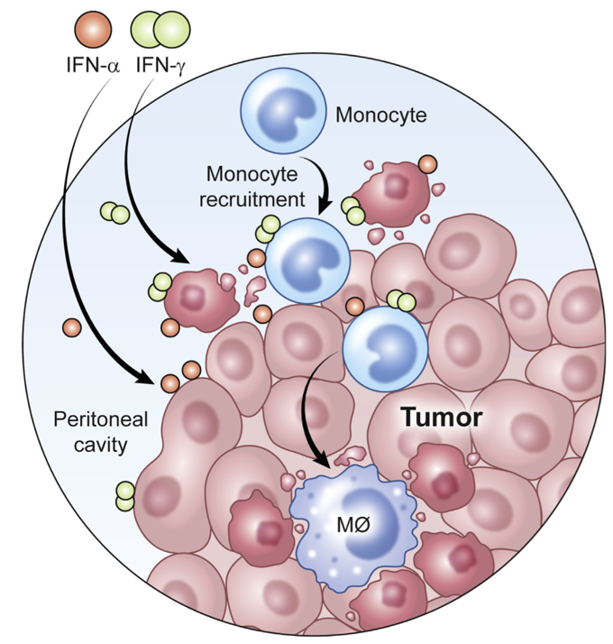 clinical trials in ovarian cancer