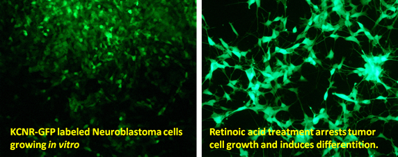 Panel 1:  KNCR-GFP labeled neuroblastoma cells growing in vitro Panel 2:  retinoic acid treatment arrests tumor cell growth and induces differention