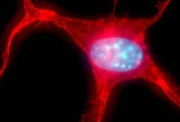 High-powered microscopic image of a tumor cell
