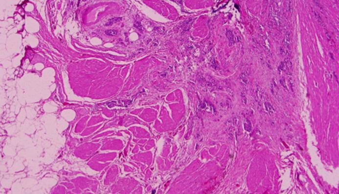 Muscle-invasive bladder cancer cells