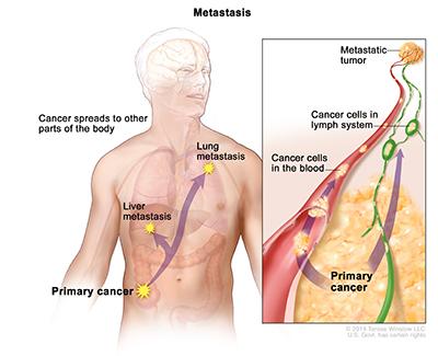 Description of metastasis