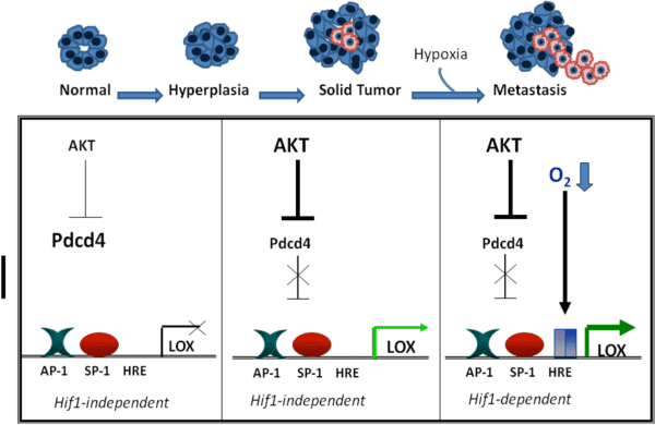 Loss of Pdcd4 may sensitize tumors to hypoxia-induced invasion and/metastasis. In normal cells Pdcd4 levels are fairly high and inhibit expression of lysyl oxidase (LOX). As cells undergo hyperplasia, they often overexpress the AKT kinase which in turn marks Pdcd4 for proteosomal degradation. Loss of Pdcd4 thus results in loss of LOX inhibition. As the tumor grows and experiences a hypoxic microenvironment, LOX expression is further enhanced through a HIF1-dependent mechanism resulting in the extracellular