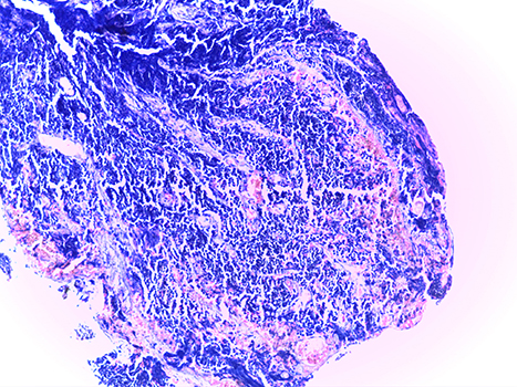 small cell lung carcinoma
