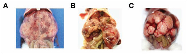 These photos show the gross morphology and histology of AKT/CAT- and MET/CAT-driven tumor models developed by using transposon technology to trigger combination oncogene expression. Tumor A shows MET/CAT-driven cells.  Tumor B shows AKT/CAT-driven cells, and Tumor C shows AKT/CAT-driven cells after they have been serially passaged.
