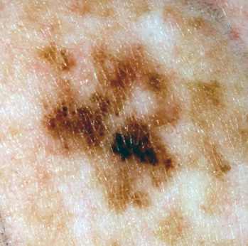 The irregularly pigmented skin lesion in a sun-exposed area demonstrates the ABCD characteristic features of malignant melanoma: Assymetry, irregular Borders, multiple Colors, and Diameter >6mm. This lesion has a UV-type PTEN mutation.